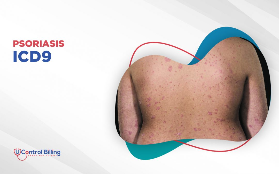 Psoriasis ICD 9 – Diagnosis, Treatment, and Coding